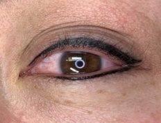 Eye Liner Laguna Medspa