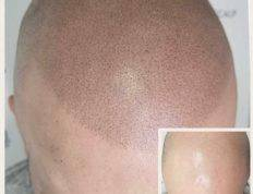 What Is Scalp Micropigmentation?